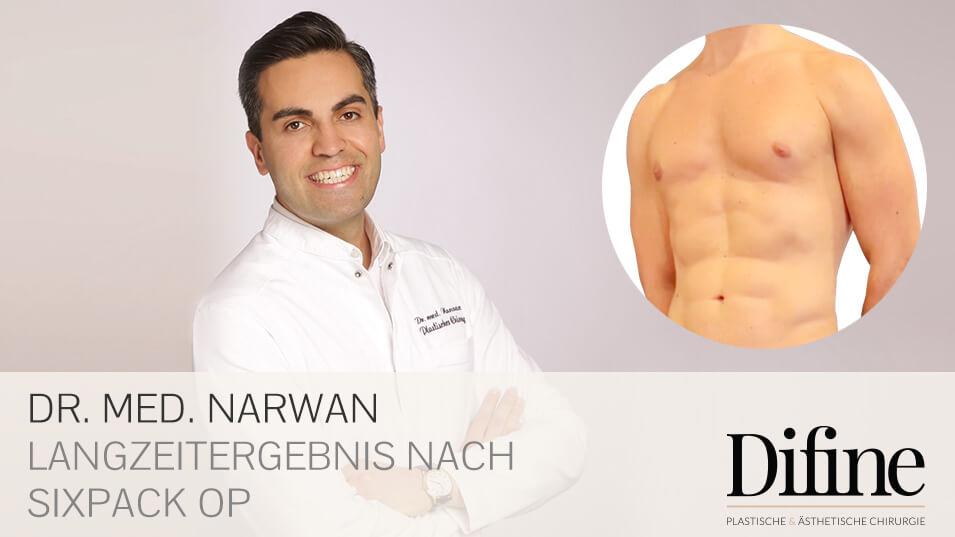 Sixpack OP » Vaser Lipo in der Praxis von Dr. med. Narwan